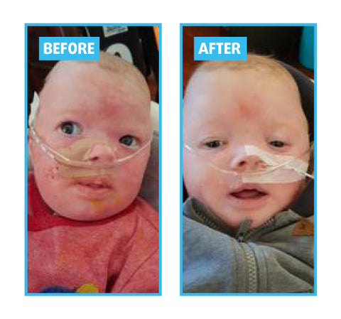 Baby eczema before and after
