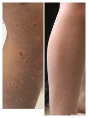 Psoriasis on legs Nada's before after photo