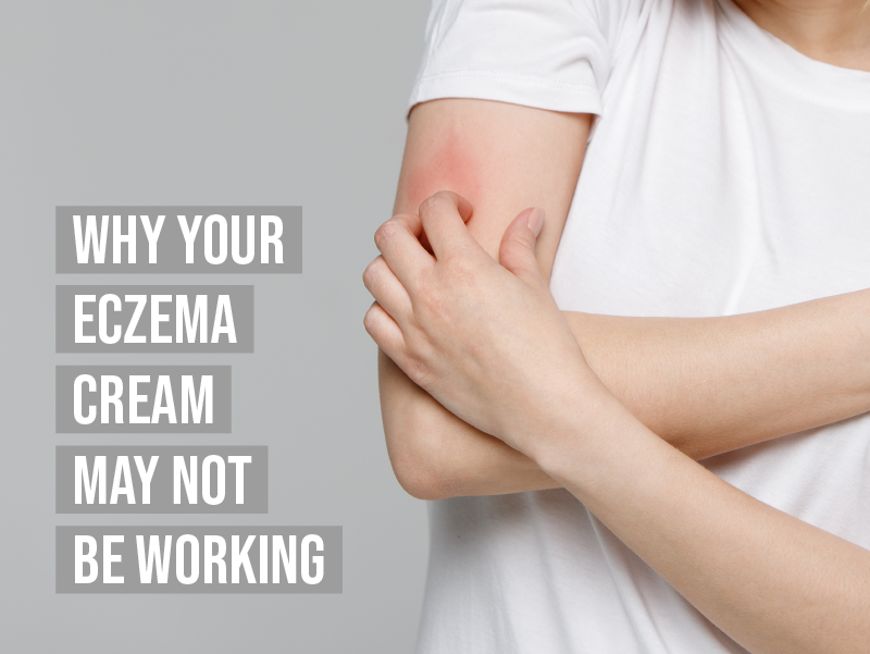 Why your eczema cream may not be working