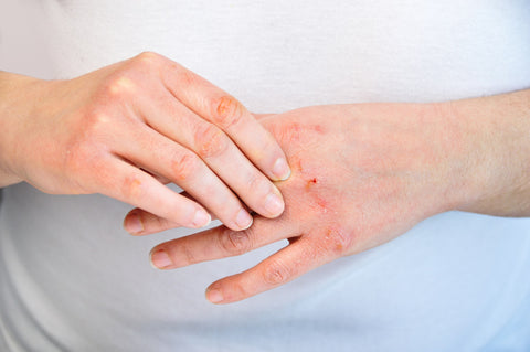 Atopic Dermaititis and how to treat eczema