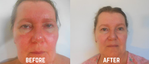 Grahams Natural Rosacea before and after of Anne Marie