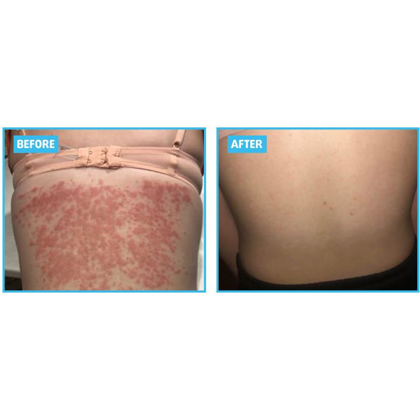 Incredible before and after psoriasis results using the Grahams Natural Psoriasis cream,