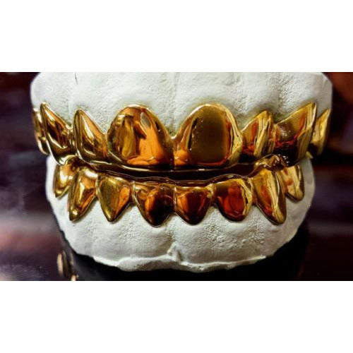 solid gold grillz