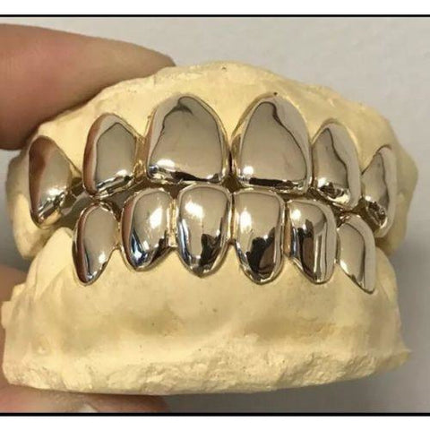 [CUSTOM-FIT] Solid Gold Grillz