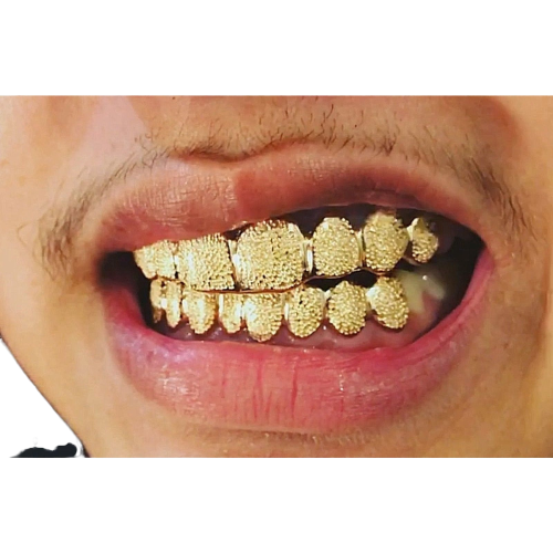[CUSTOM-FIT] Solid Gold Dust Diamond Grillz