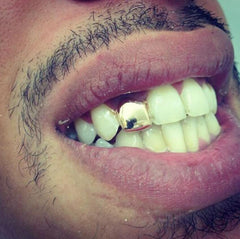 one tooth grill