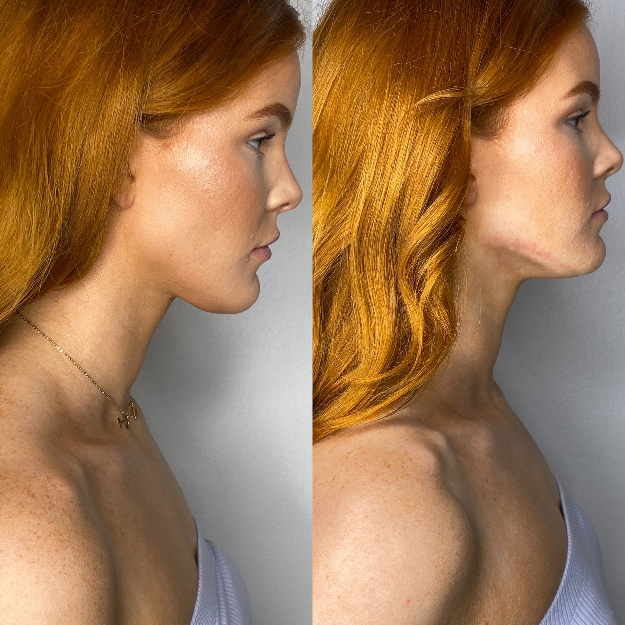 Cryo Neck Lift-Double Chin