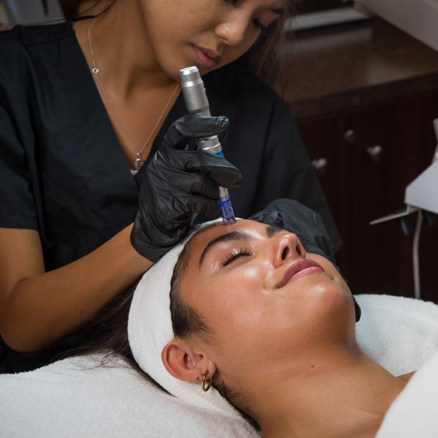 Micro Needling Facial Buy One Get One 60% Off