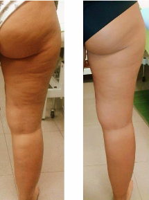 Cellulite Treatments Take $145 OFF