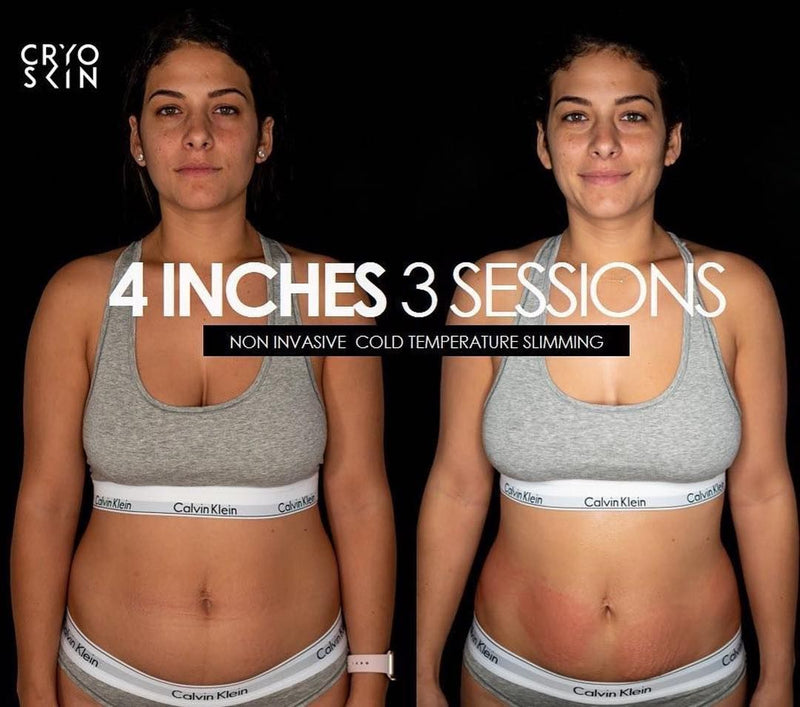 Cryo Slimming 2 Series + Free Cryo Facial
