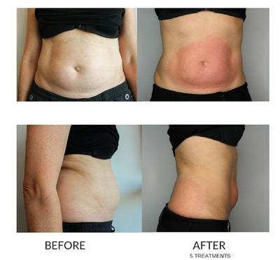Cryo Slimming One Session