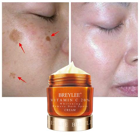 Remove Dark Spots Facial Vitamin C Whitening Cream free shipping