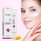 RtopR Mango Acne Repair Cream