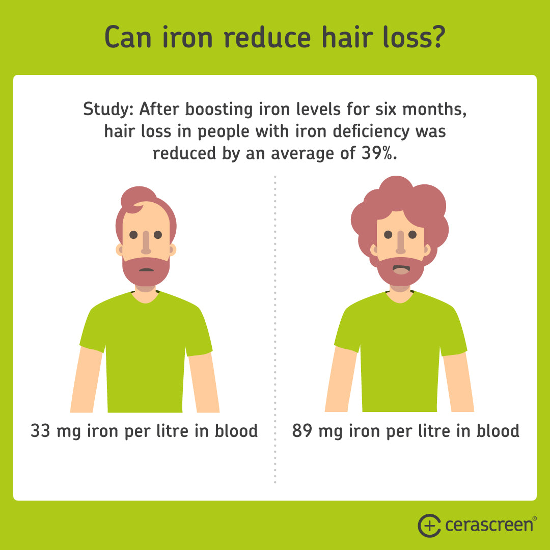 Iron deficiency symptoms: Can iron prevent hair loss?