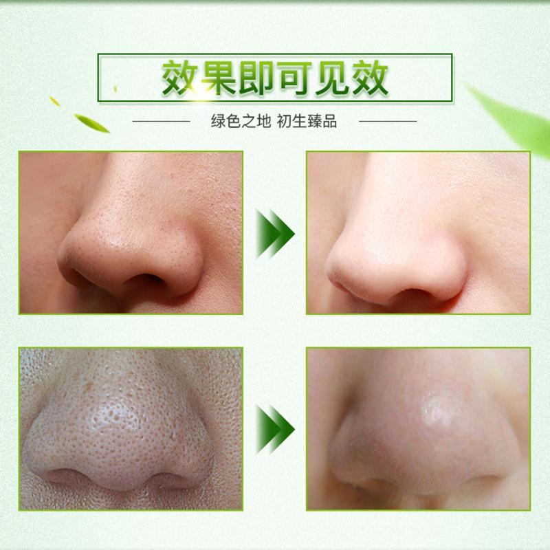 Bamboo Charcoal Blackhead Remover Nose Mask