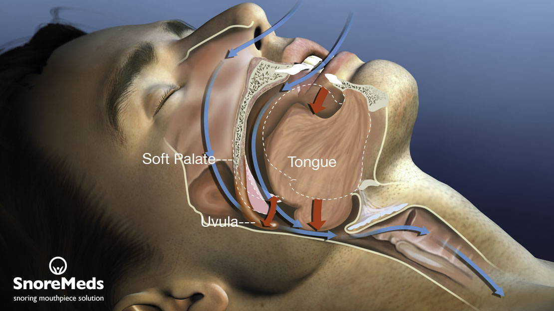 Snoring and the concept explained