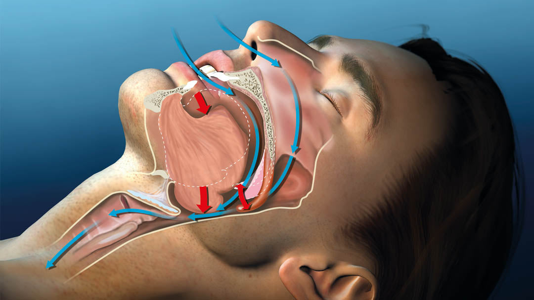 Diagram showing how an anti snoring mouthpiece works.