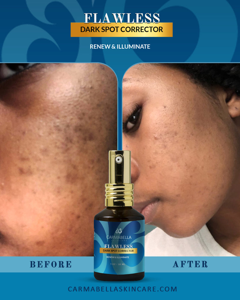 Natural Skincare Real Results Flawless Dark Spot Corrector | CarmaBella Skincare LLC