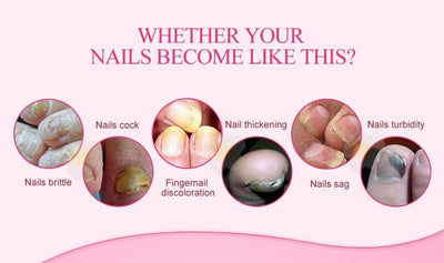 Anti Fungal Nail Infection