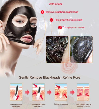 Blackhead Removal Treatment