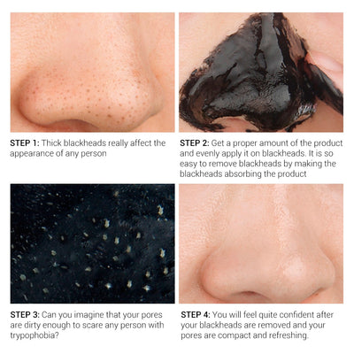 Blackhead Remover Mask Face