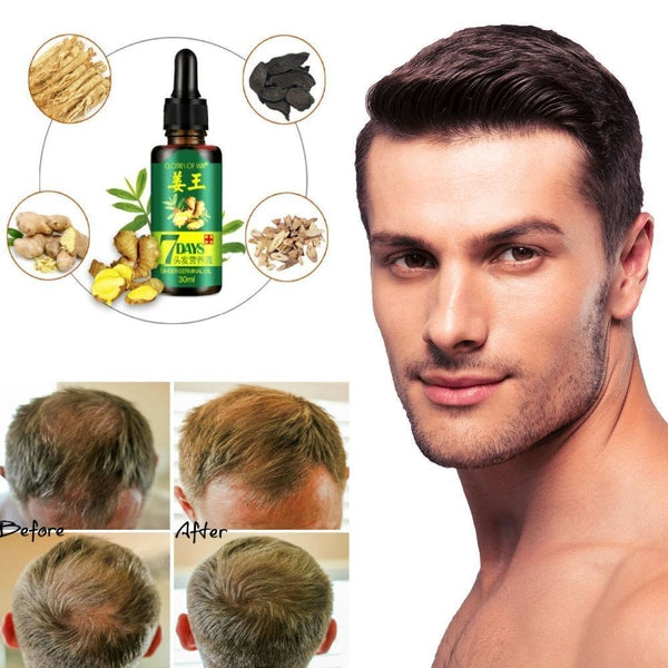 Hair Regrow Oil Serum in 7 Days w/ Ginger