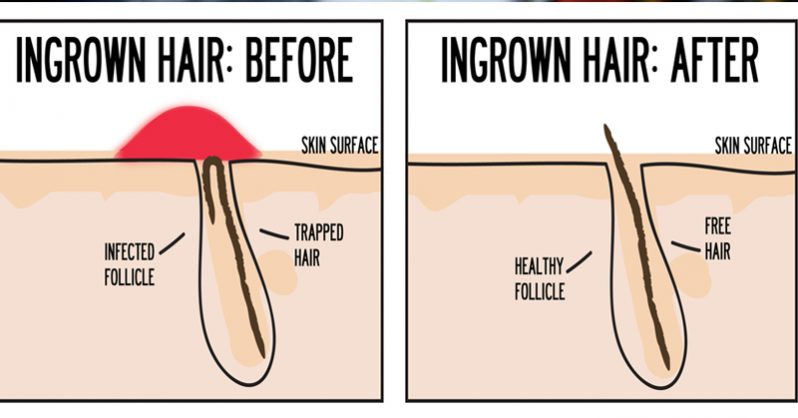 Ingrown Pubic Hairs: Definition, Prevention & Treatment