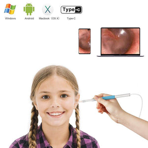 DoctorEar™ 3-in-1 Ear Cleaning Endoscope