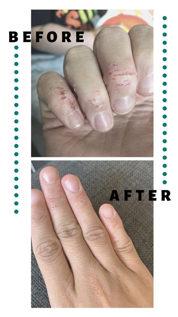 Before and after image of hands after using wonder balm