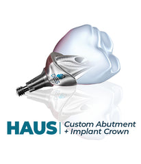 Custom Abutment + Implant Crown