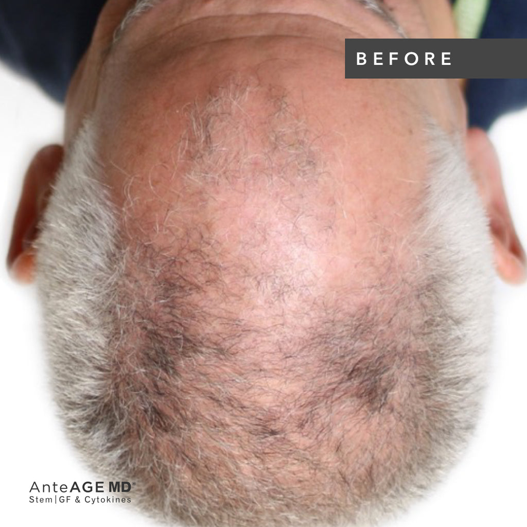 AnteAGE MD Hair Microneedling Solution