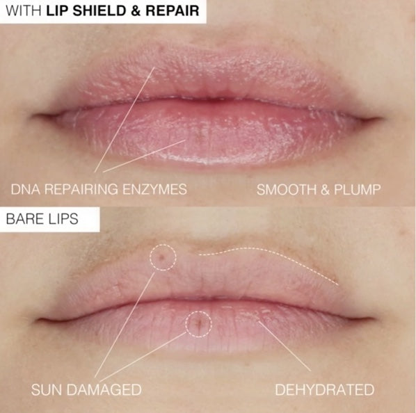 Lip Shield & Repair
