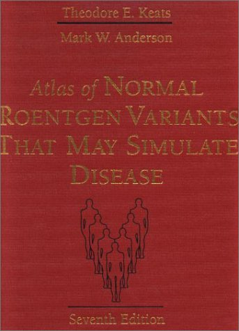 Atlas Of Normal Roentgen Variants That May Simulate Disease, 7E
