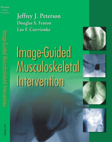 Image-Guided Musculoskeletal Intervention, 1E