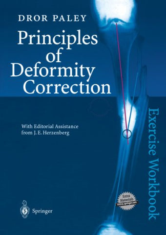 Principles Of Deformity Correction