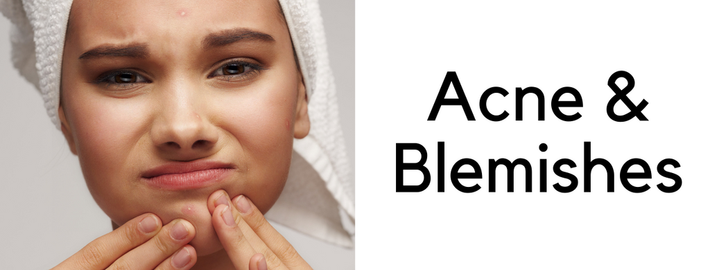 Acne and Blemishes treatments, creams and cleansers
