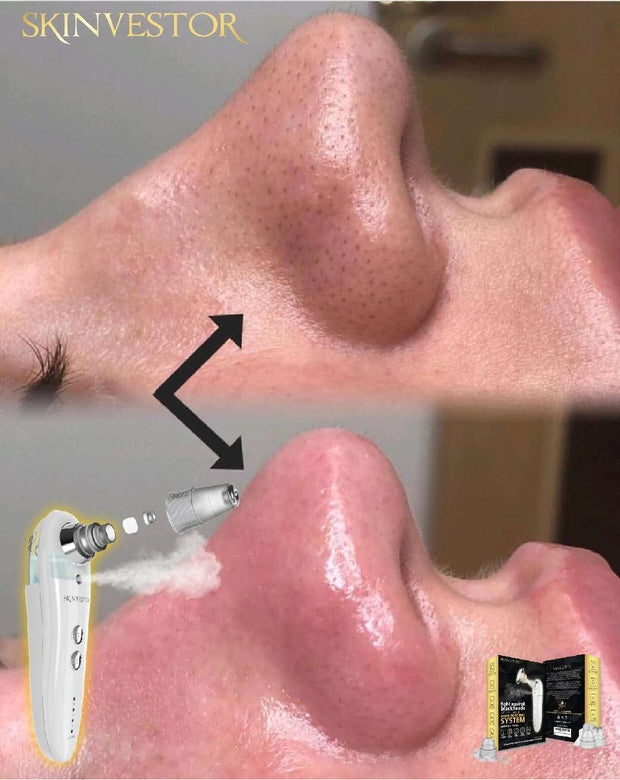[2-IN-1] Pore Vacuum & Skin Soothing Humidifier System: Version Used In All Japanese Spas!