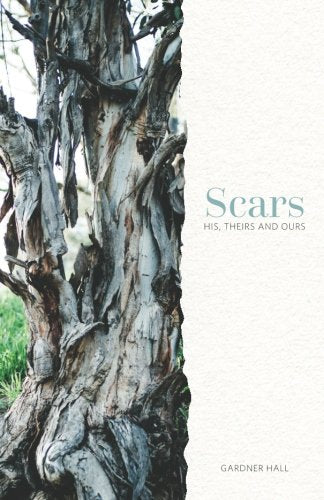 Scars: His, Theirs and Ours