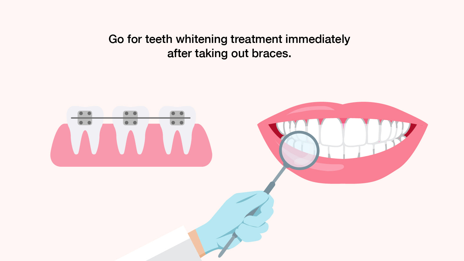 How To Overcome Yellow Teeth After Wearing Braces? – beamglo