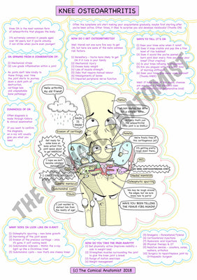 A4 Colour Knee Joint Osteoarthritis Notes Page