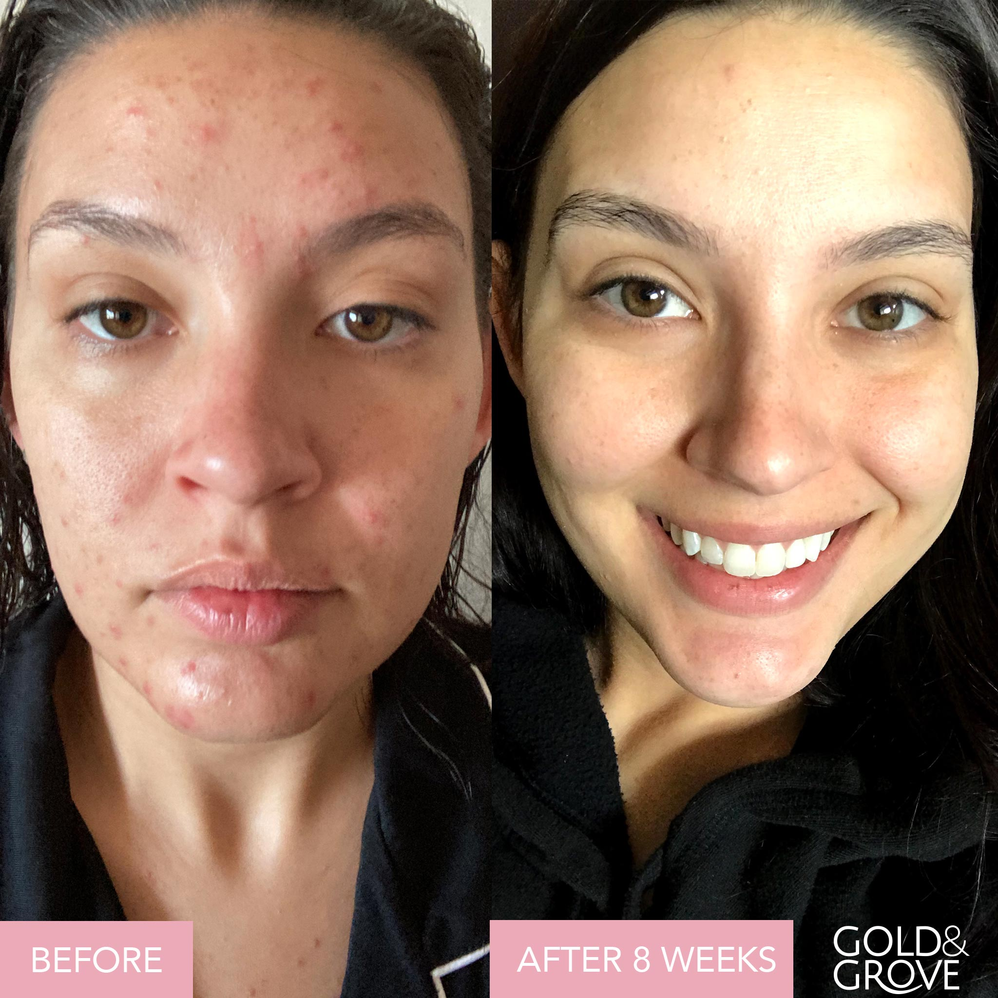Gold & Grove Blemish Blend Skin Clearing Supplement