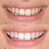 GLO Brilliant Teeth 3 Day Weekend Whitener