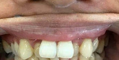 Case 11: Invisalign with Whitening
