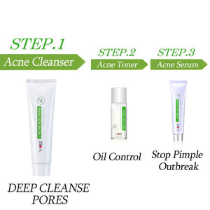 Acne Clearing Steps
