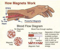 Magnetic Therapy is a body-energy therapy that involves the application of magnets or magnetic fields to the body for the purpose of healing or health benefits.