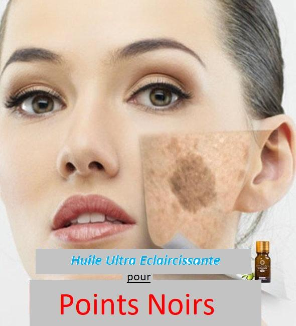 Huile anti points noirs - anti rides Madame Cosmetique