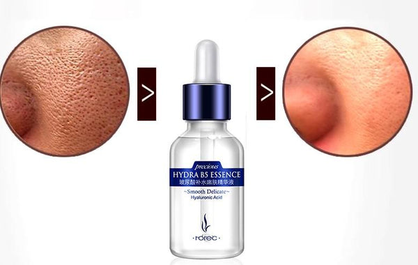 Complexe Anti-âge - Acide Hyaluronic - Vitamine B5 - Lift - Repulpant soins 123maquillage