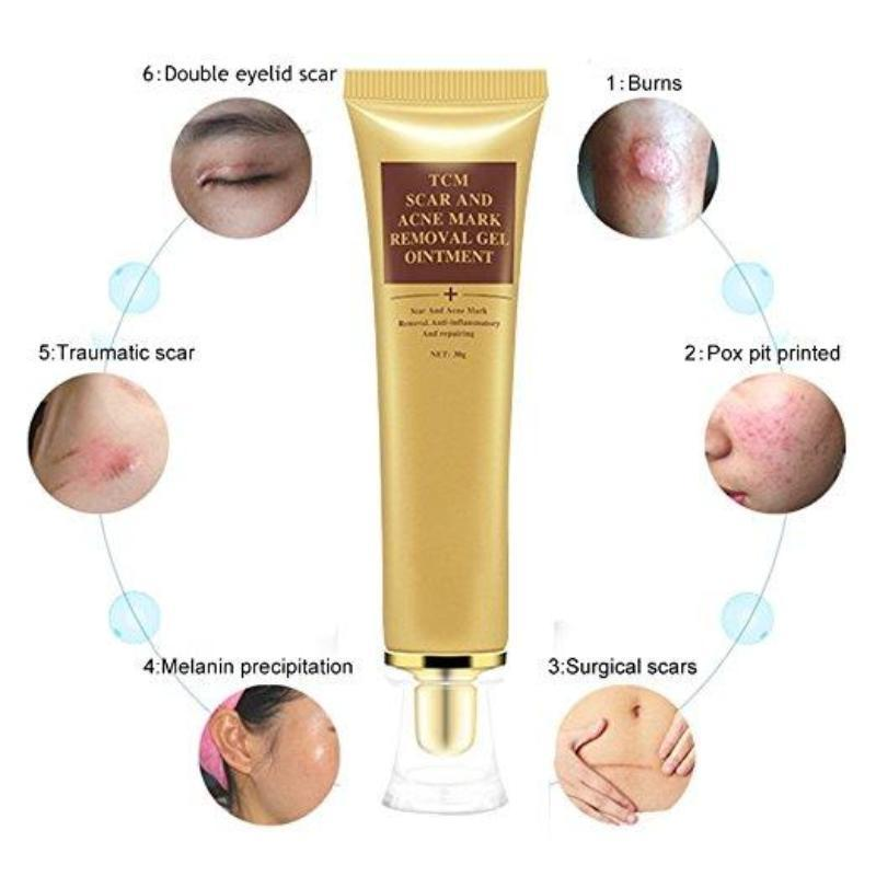 Acne Scar Removal Super Cream