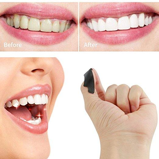 Charcoal Teeth Whitening Strips (28 strips)