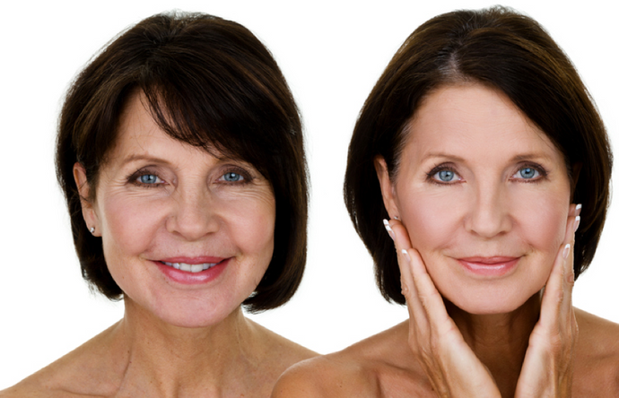 The 4 Different Wrinkle Types and How to Treat Each One